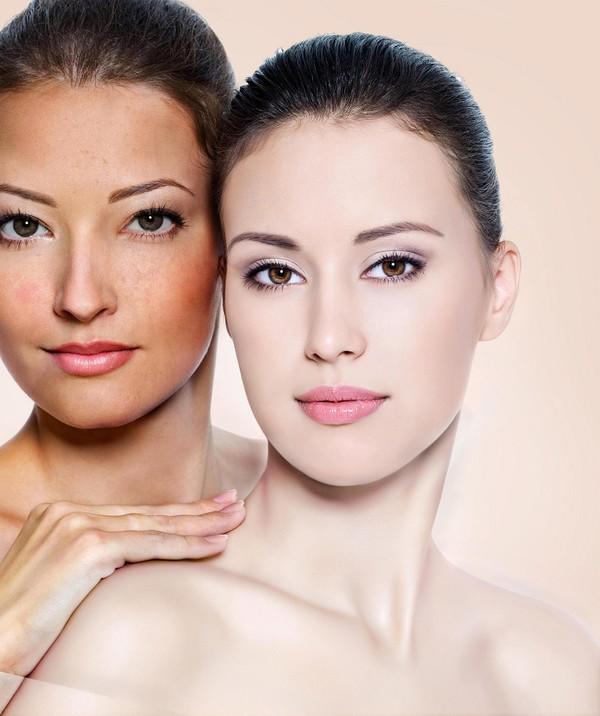 Kem dưỡng trắng da mặt trị nám chống lão hóa da  ngọc trinh spa - 10