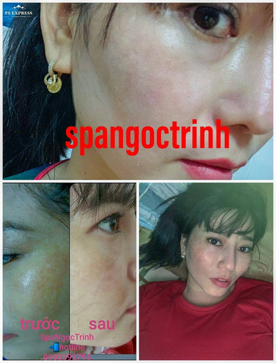 https://spangoctrinh.com/dich-vu/tri-nam-da-mat-tan-nhang-hieu-qua-tan-goc.html