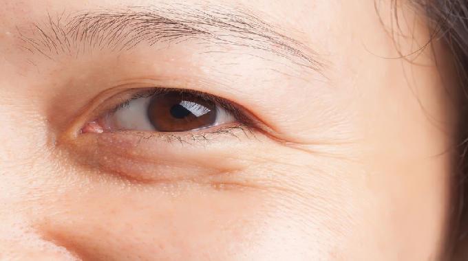 Cách Xóa Nếp Nhăn Vùng Mắt Hiệu Quả Mà Bạn Nên Biết