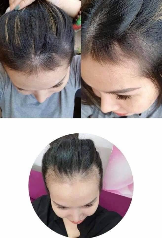 SẢN PHẨM DƯỠNG/ KÍCH THÍCH MỌC TÓC /ARAYUN BIOTA ORIENTAL HAIR TONIC 80ML