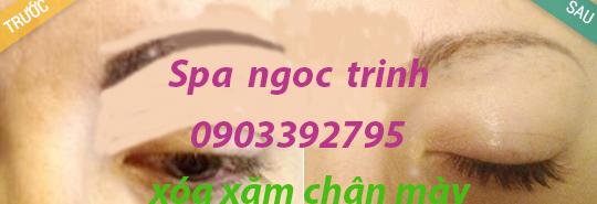 Xóa Xăm Lông Mày Bao Nhiêu