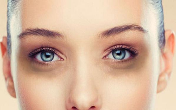 trị thâm quầng mắt bằng công nghệ laser