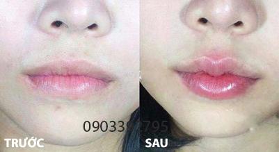 Tạo môi trái tiêm không cần phẫu thuật